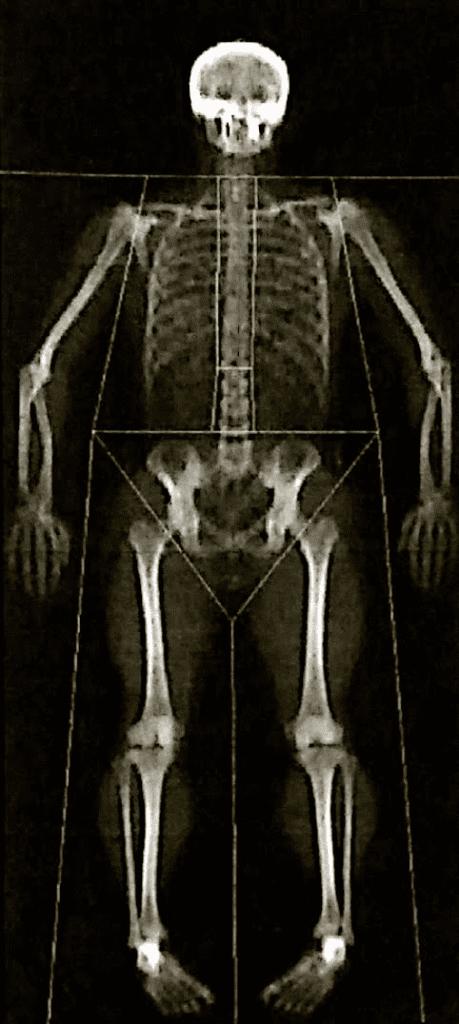 MANvFAT DEXA scan
