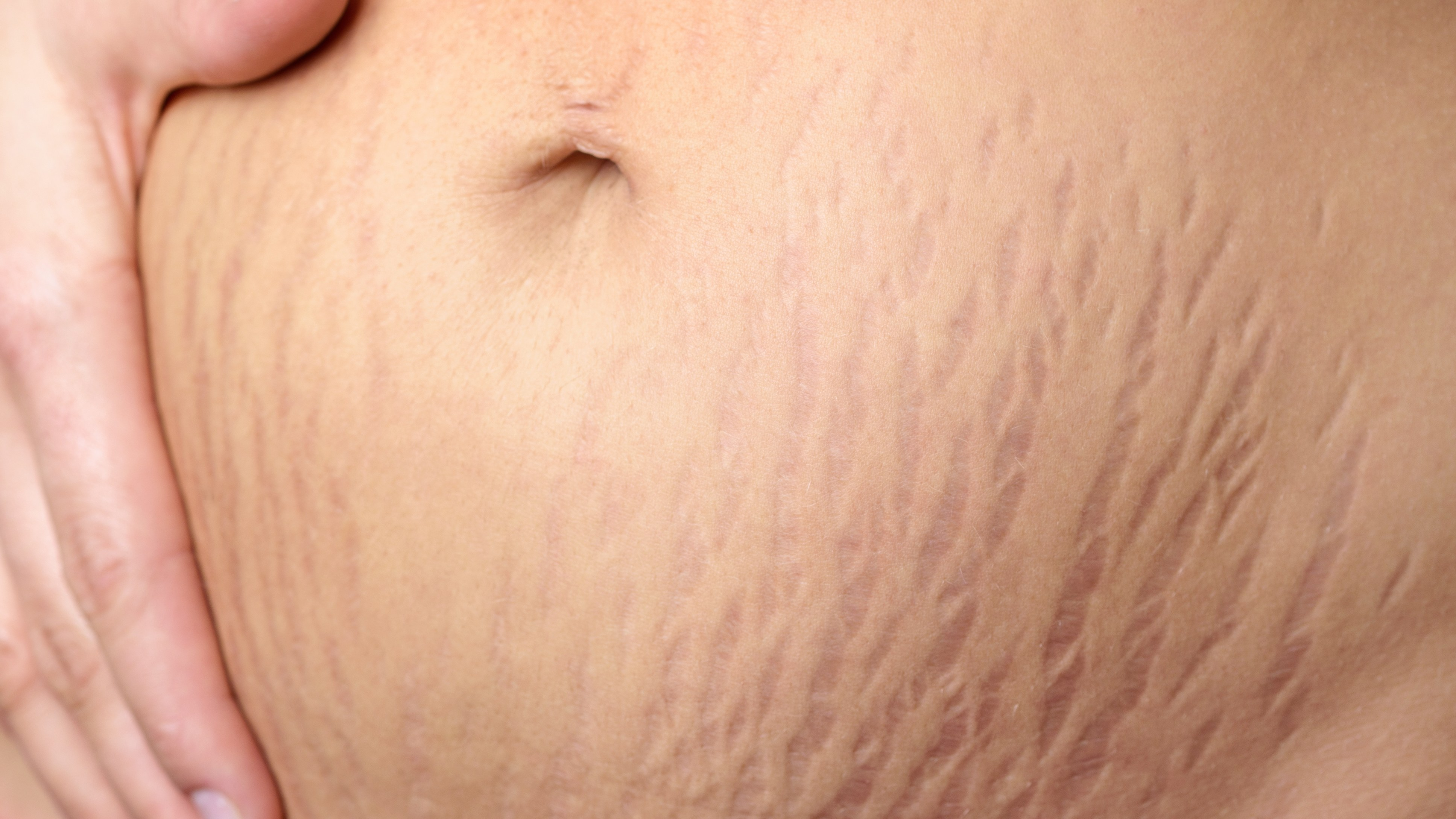 Stretch Marks Everything You Need To Know  Man V Fat-7280