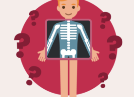 How well do you know your bones?