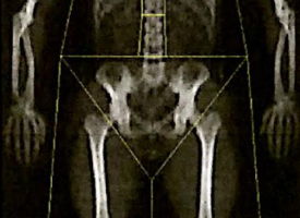DEXA Scans Arrive In The UK – What Are You Made Of?