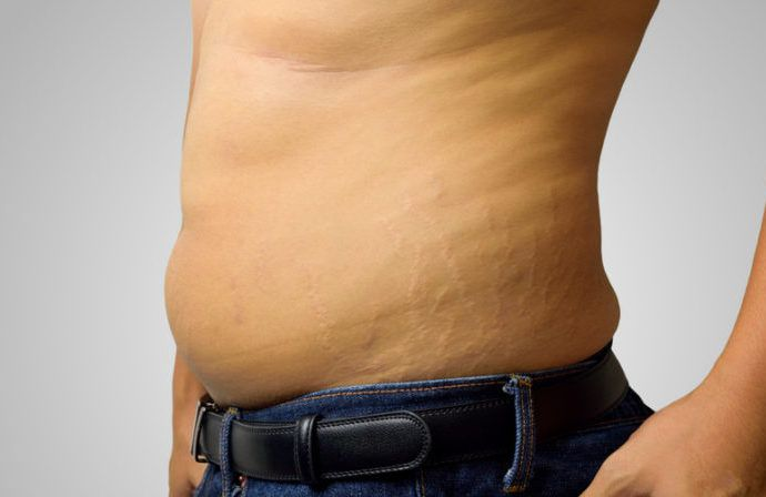 Stretch Marks Everything You Need To Know Man V Fat
