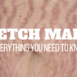 Photo: Stretch Marks: Everything You Need To Know