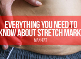 Stretch Marks: Everything You Need To Know